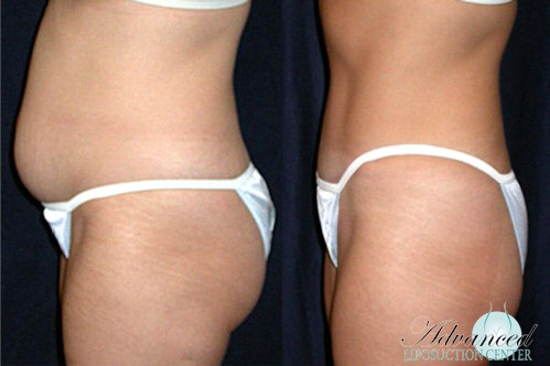 Liposuction Pittsburgh PA, the skin center, water jet liposuction pittsburgh, Aqua Lipo, vibroliposuction