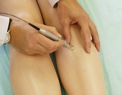 Spider veins medical laser, surgery