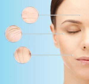 Botox,naturally occurring,liquid facelift,nose,laugh lines